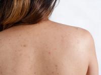 Coşurile de pe spate şi corp – de ce apar şi cum le putem preveni