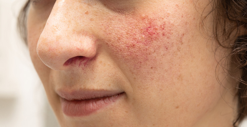 bola piele, tratament laser