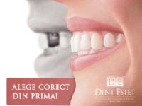 Cum se schimba viaţa după implantul dentar