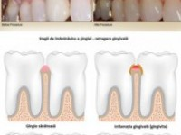 Tratează retragerea gingiilor cu o tehnică unică în România