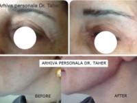 Liftingul facial nechirurgical te întinereşte cu peste 10 ani în doar o oră